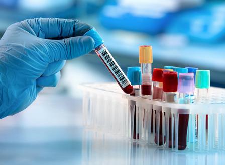 Тестват над 200 австралийци за ХИВ, властите ползвали едни и същи кръвни тестове повече от веднъж