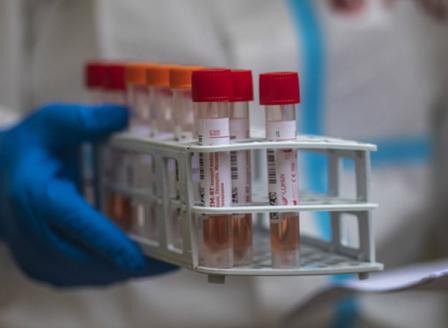 1472 са новите случаи на коронавирус, 29 души са починали