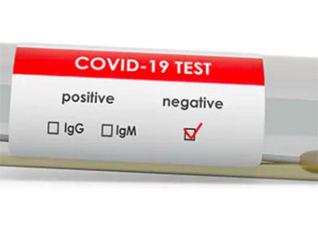 Ирландия и САЩ въвеждат изискване за отрицателен тест за коронавирус за пристигащите