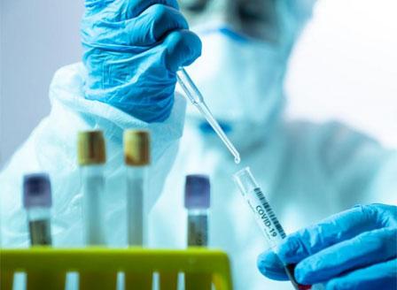 482 са новите случаи на коронавирус при направени 8057 теста